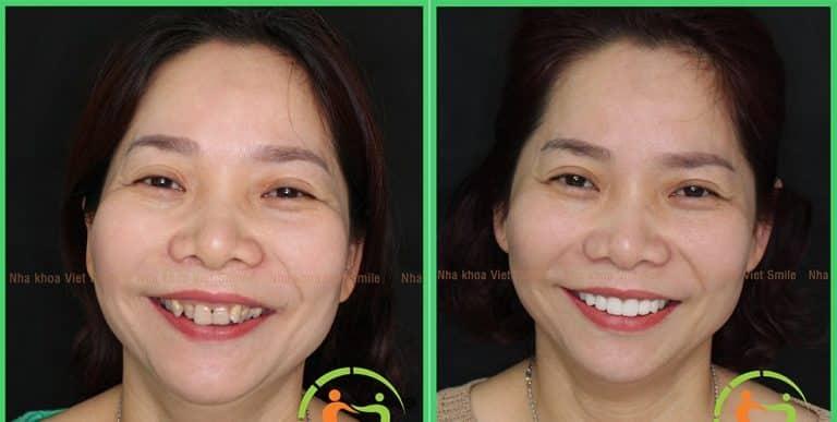 Chị Hiếu bọc răng sứ cho hàm răng nhiễm kháng sinh