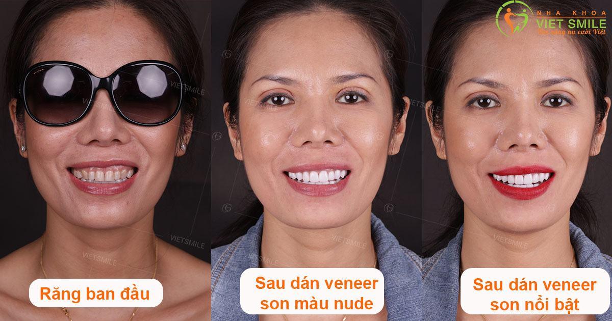 Nụ cười khách hàng với sứ Veneer Emax Press