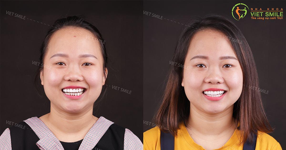 Sự thay đổi khách hàng trước và sau phủ răng sứ