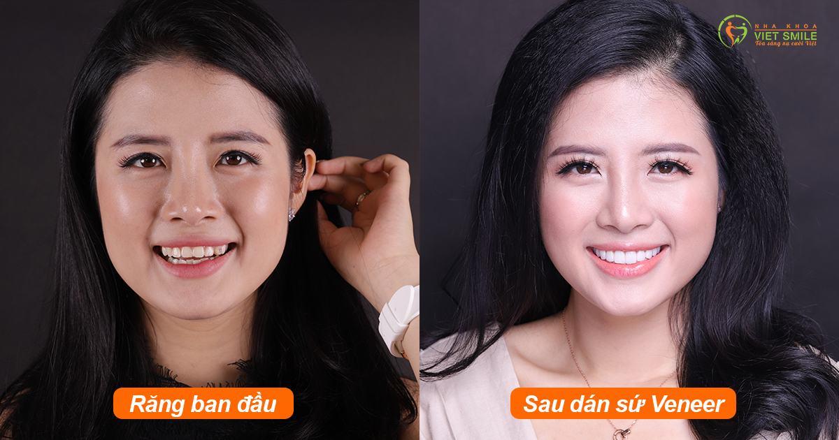 Nụ cười khách hàng trước và sau khi dán sứ Lisi Press