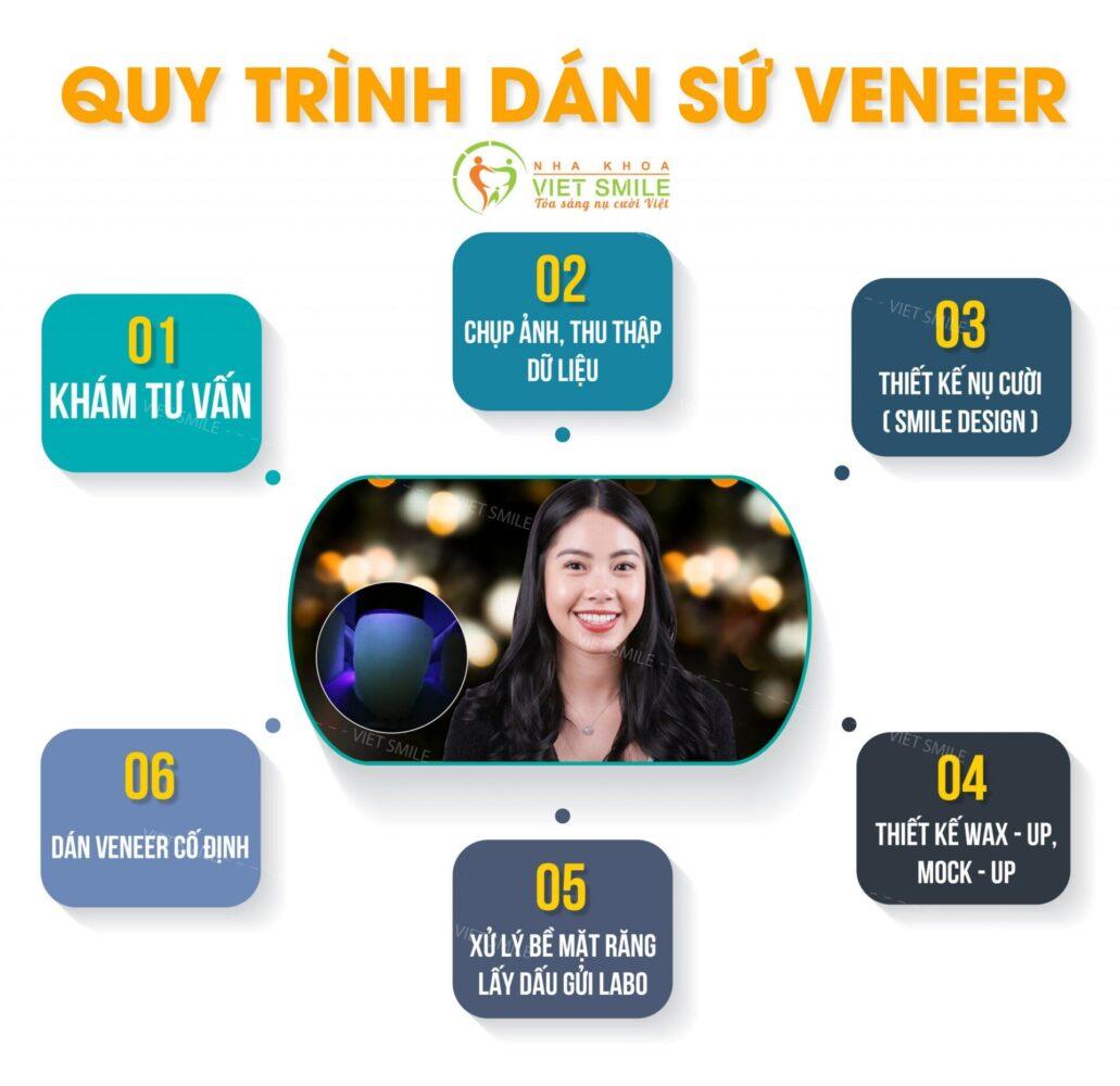 Tổng quan quy trình dán sứ veneer tại Nha khoa Việt Smile