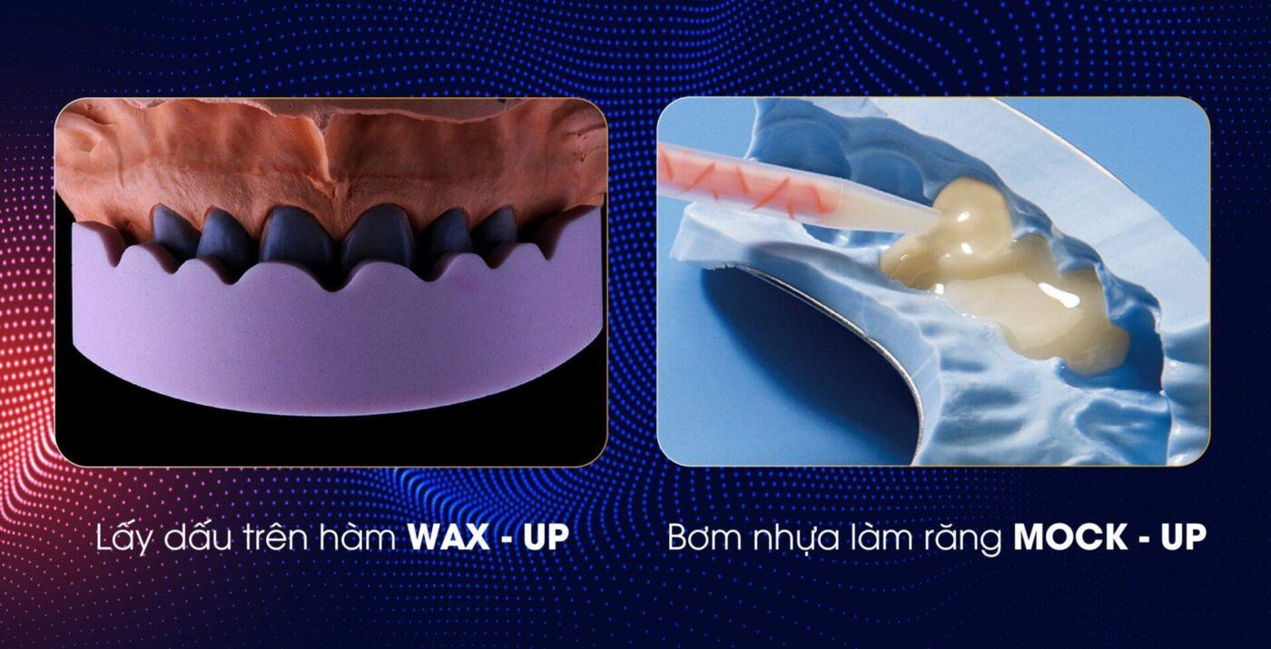 Thử trước dáng răng giúp khách hàng dễ hình dung ra dáng răng của mình sau khi làm dán sứ veneer