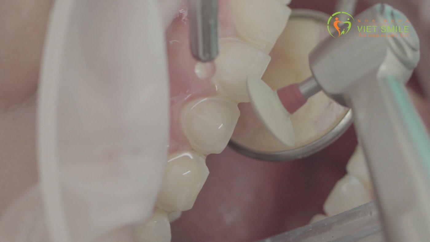 Bác sĩ xử lý làm mịn bề mặt răng và lấy dấu gửi Labo để làm miếng dán veneer theo thiết kế form răng dành riêng cho bạn