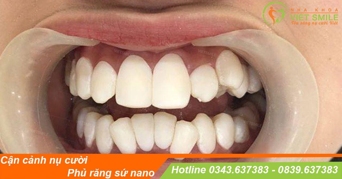 Phủ răng sứ nano coi chừng tiền mất tật mang
