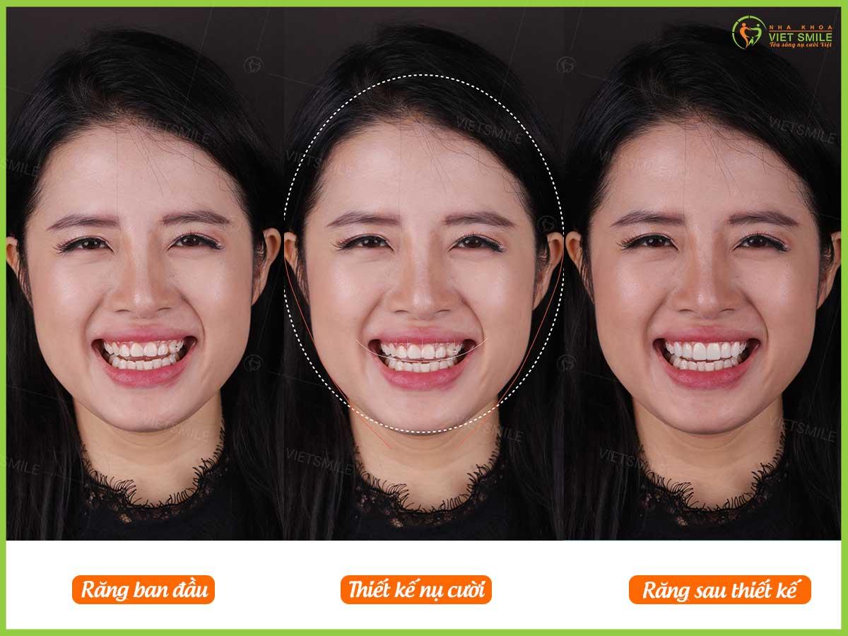 Hình ảnh trước và sau khi smile design của khách hàng dán sứ veneer