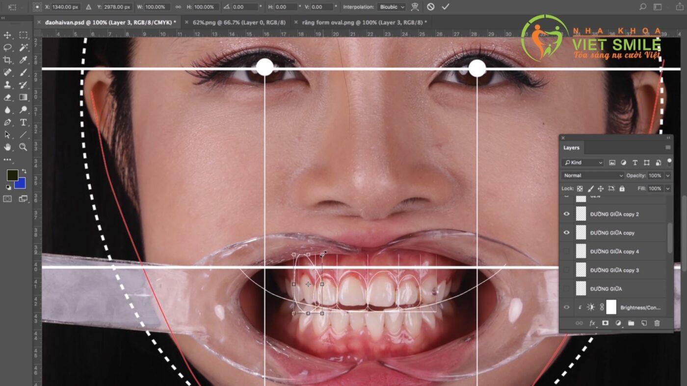 Thiết kế nụ cười mới với sự kết hợp của phần mềm Photoshop và Smile Design