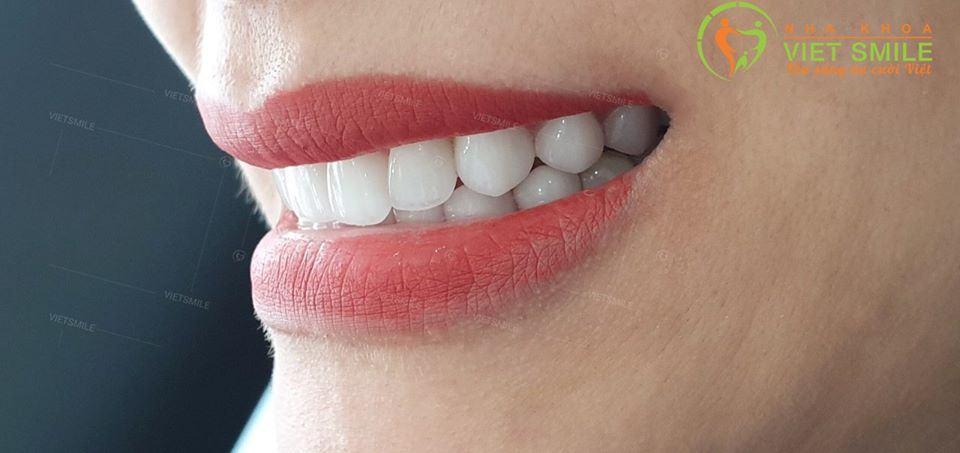 Hiệu ứng rìa cắn trong cùng dáng răng thanh manh giúp nụ cười đẹp hoàn hảo