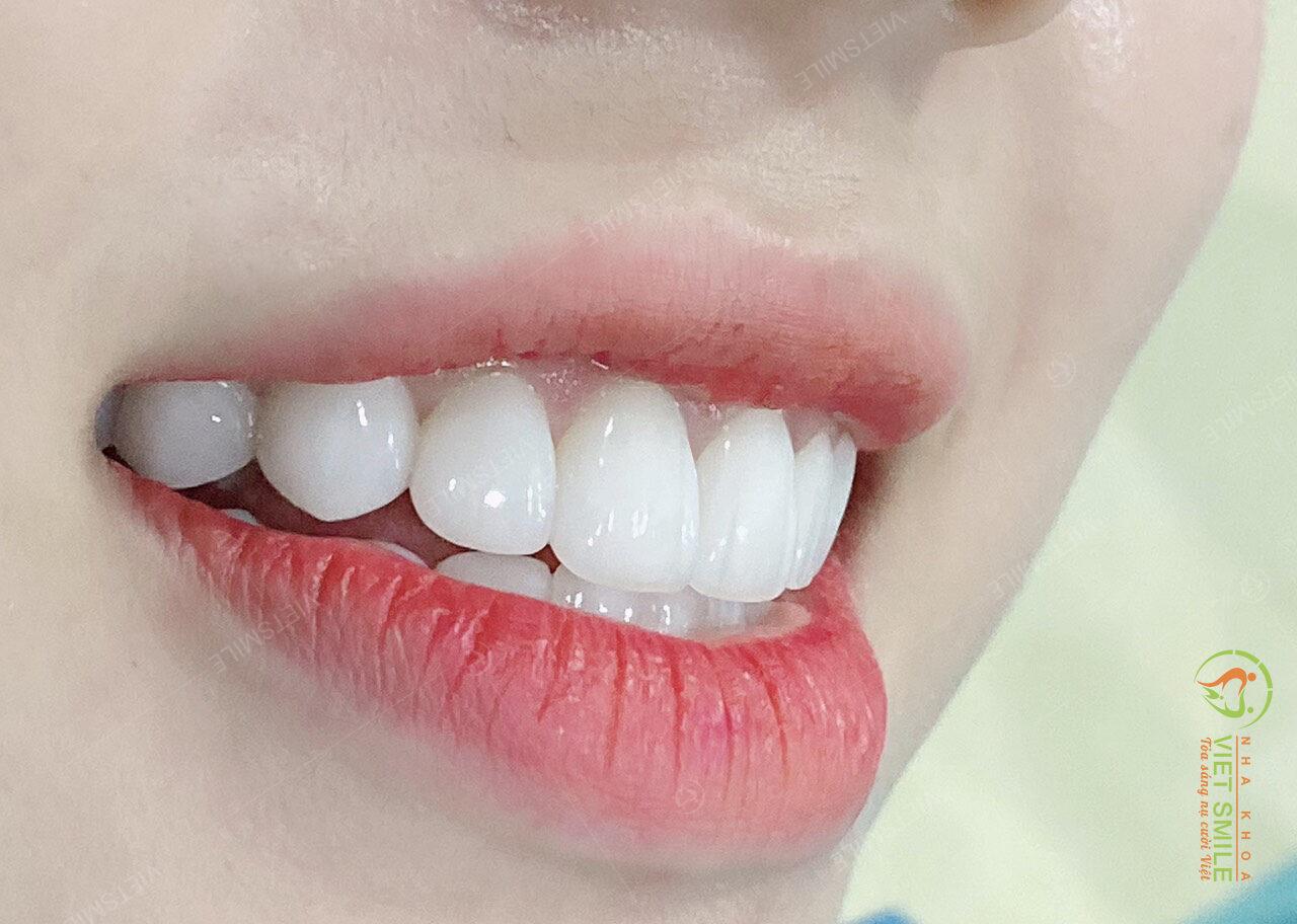 Dán sứ veneer màu trắng trong tự nhiên đang là xu hướng được đa số các khách hàng lựa chọn
