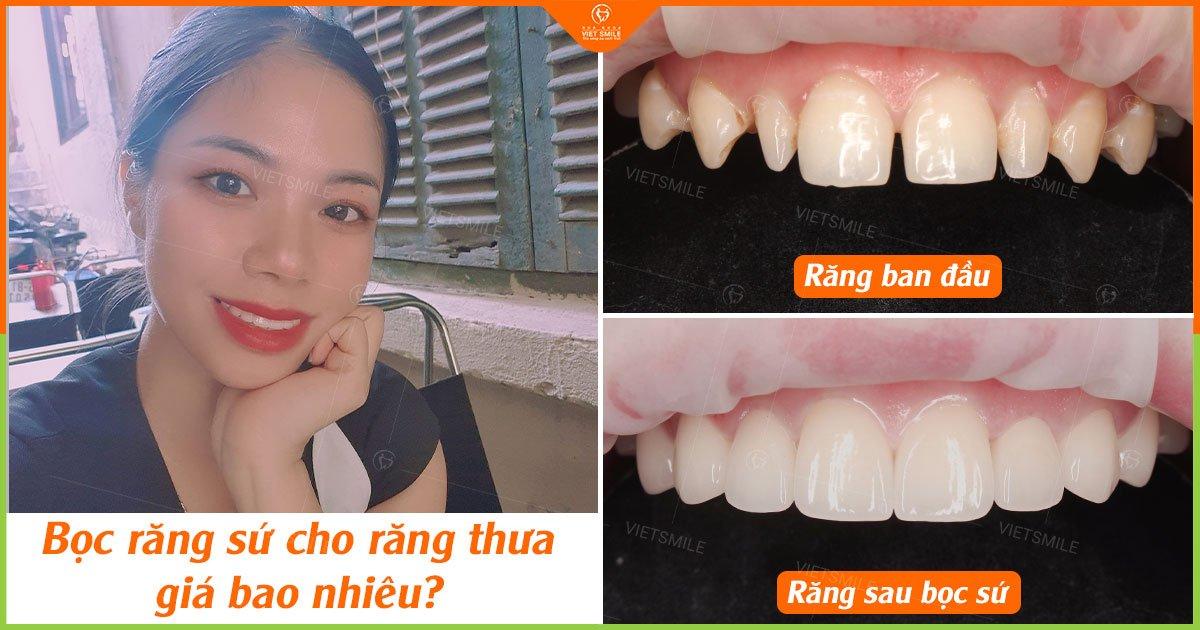 Bọc răng sứ cho răng thưa giá bao nhiêu?