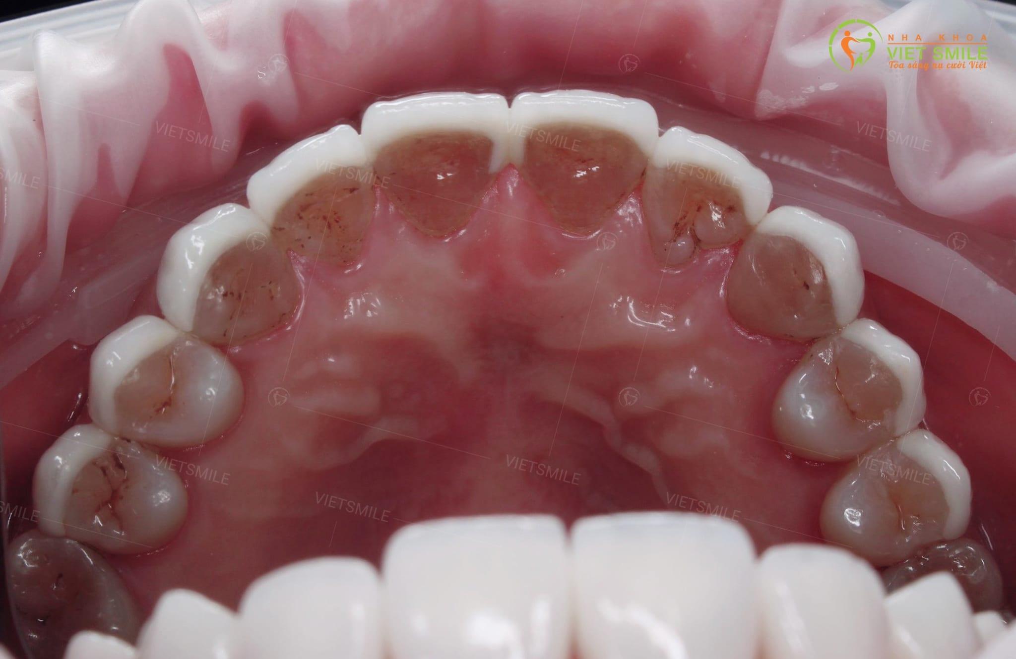 Mặt trong hàm trên răng dán sứ veneer