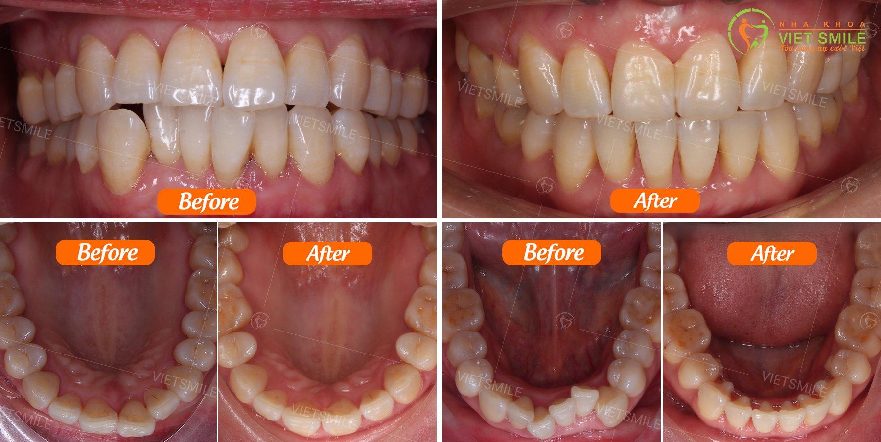 Sự thay đổi của cung răng sau khi niềng