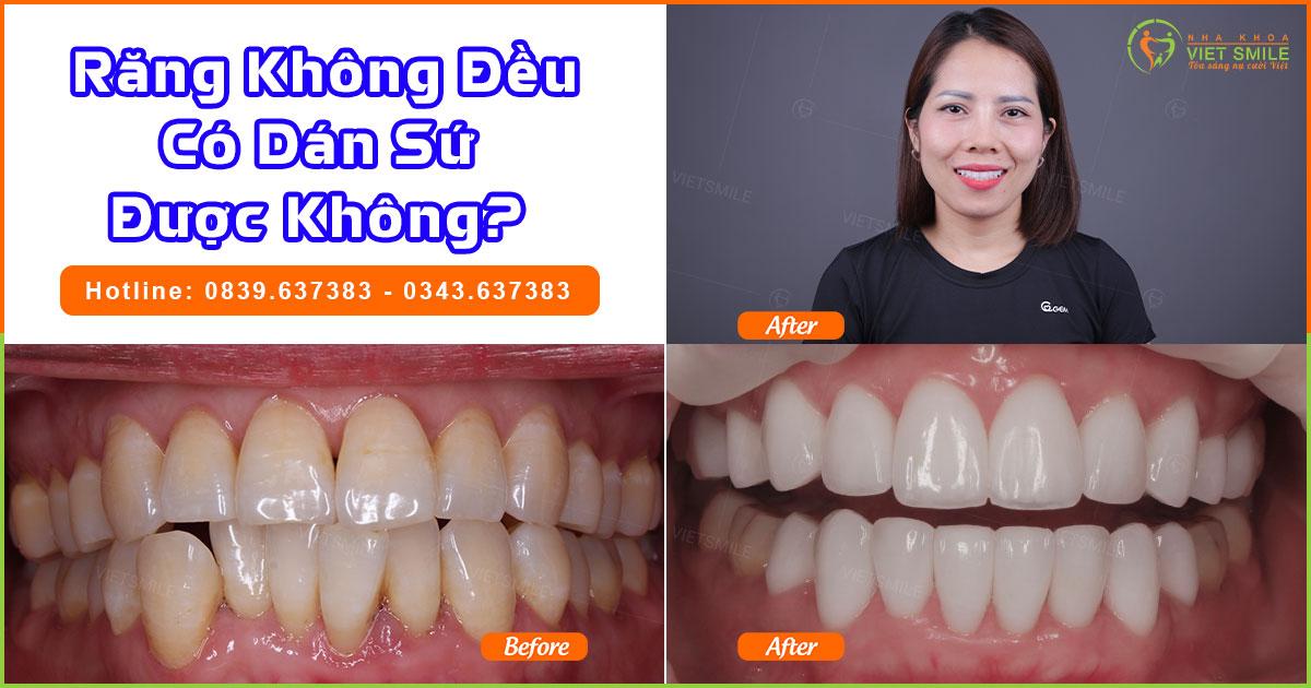 Răng không đều có dán sứ được không?