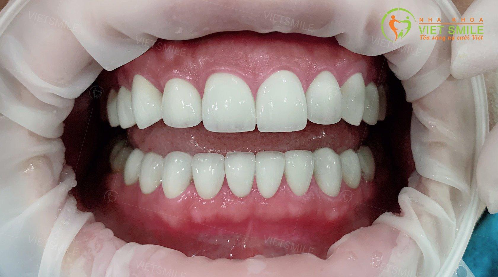 Răng sau dán sứ veneer nhiễm kháng sinh được thực hiện bởi Nha khoa Việt Smile