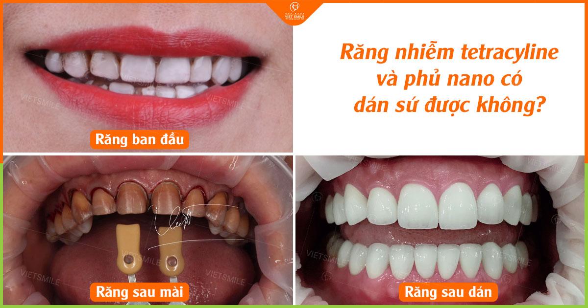 Răng nhiễm kháng sinh có dán sứ veneer được không?