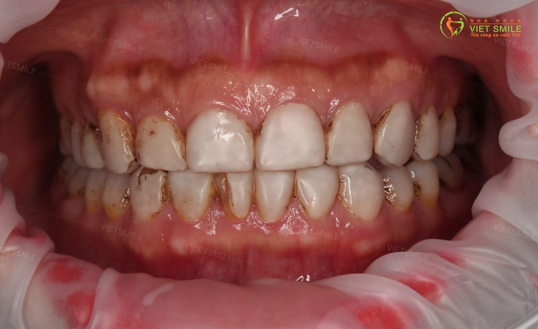 Răng sau khi phủ sứ nano sau vài năm