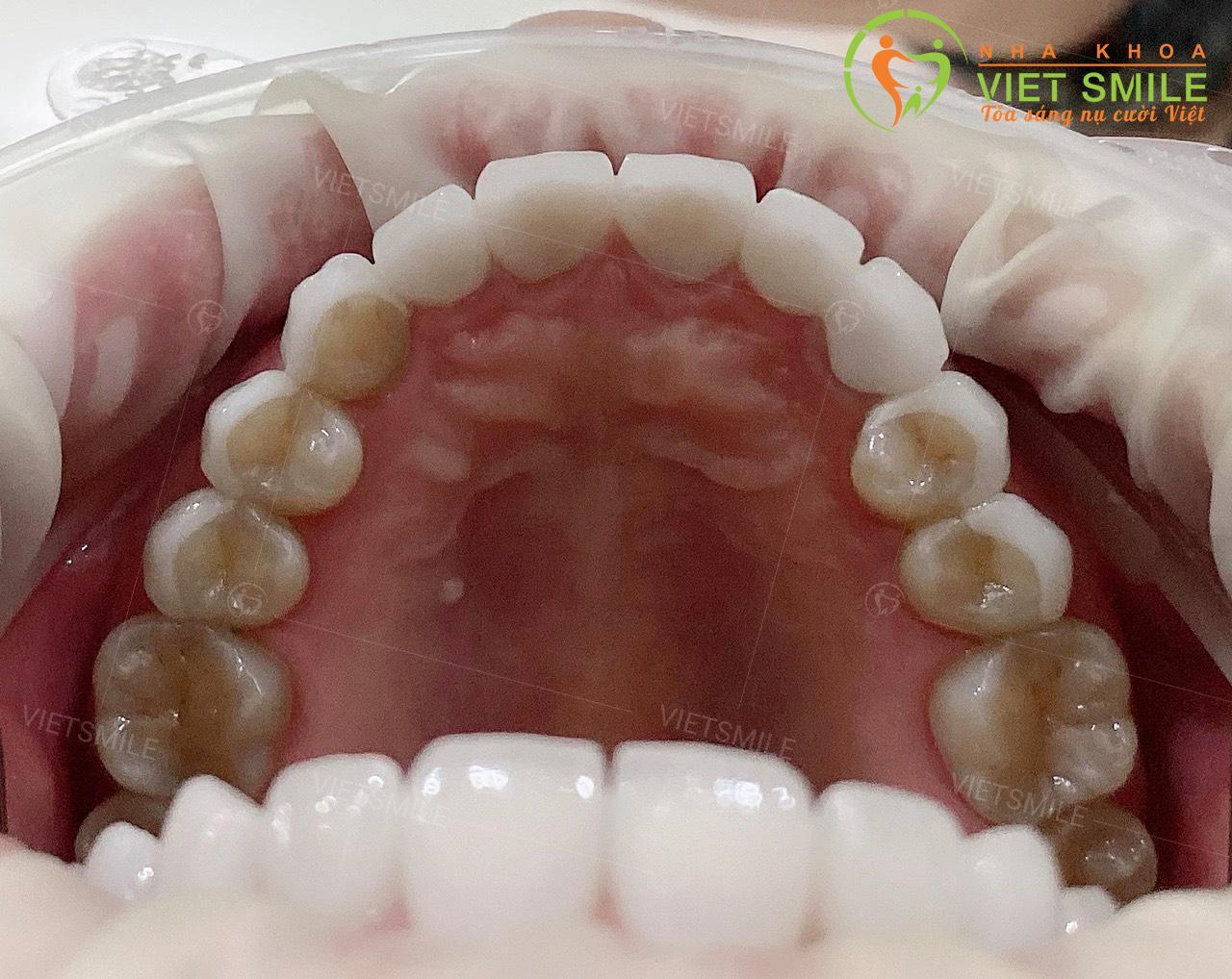 So sánh mặt trong răng dán sứ và bọc sứ