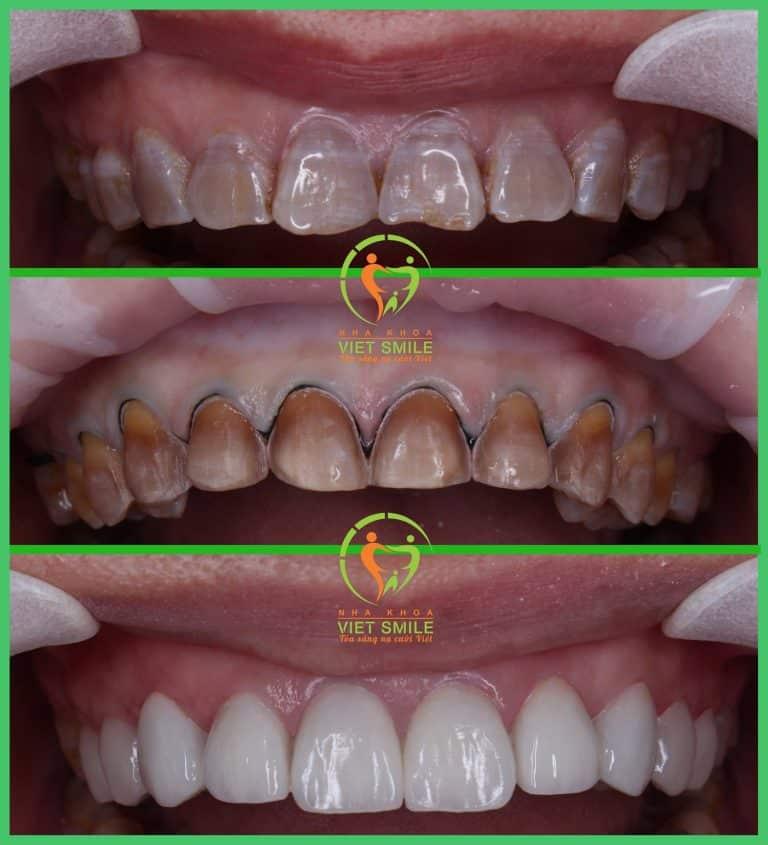 Răng ban đầu - răn sau mài - răng sau dán sứ veneer