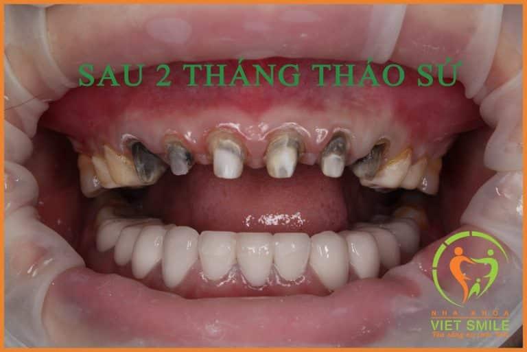 2 tháng sau khi lợi ổn định, Bác sĩ tháo lớp sứ cũ ra để xử lý răng