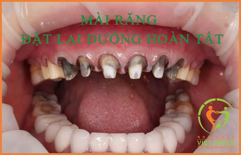 Xử lý đường hoàn tất và điều trị tủy các răng bị viêm tủy