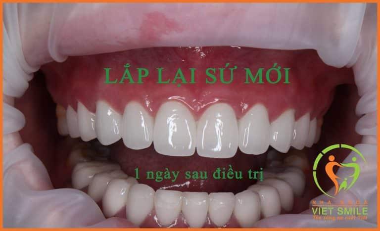 Hoàn thiện sau khi bọc lại răng sứ mới