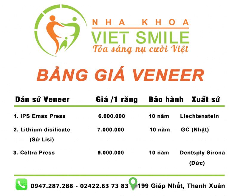 bang gia dan su veneer Nha khoa Viet Smile