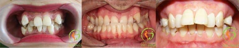 Những trường hợp răng hô, móm, khấp khểnh, mọc lệch lạc... cần được chỉnh nha trước khi làm thẩm mỹ