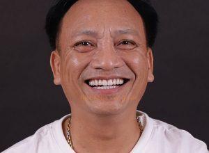 Chú Phi Phừng dán sứ 20 răng veneer