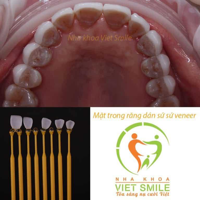 Mặt trong của răng dán sứ veneer