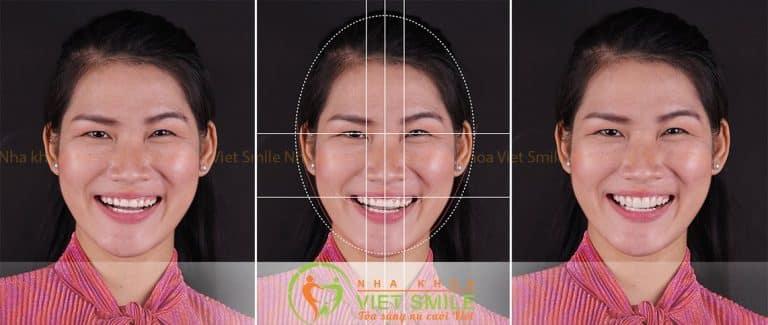 Hình ảnh thiết kế Smile Design của Ngọc Anh