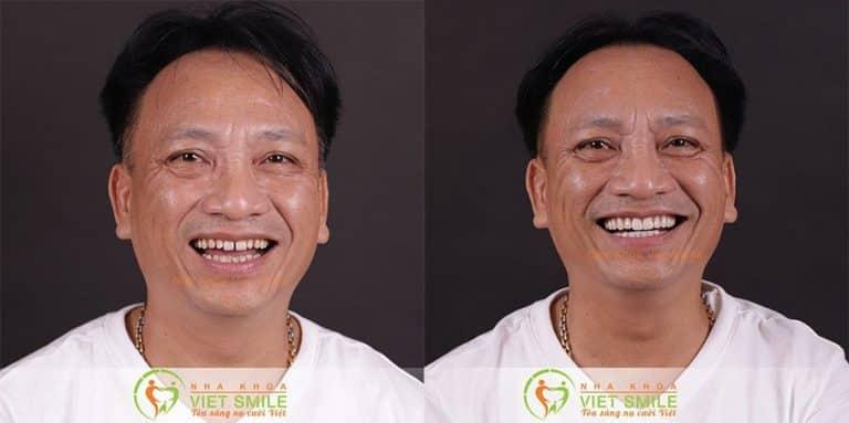 Hình ảnh trước và sau khi dán sứ veneer