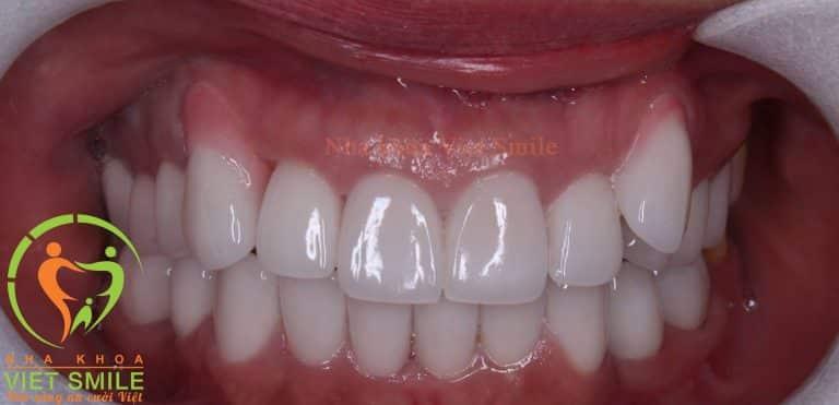 Răng chị T.Thảo sau khi điều trị lại