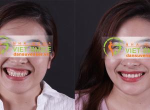 Chi phí cắt lợi thẩm mỹ tại Nha khoa Việt Smile